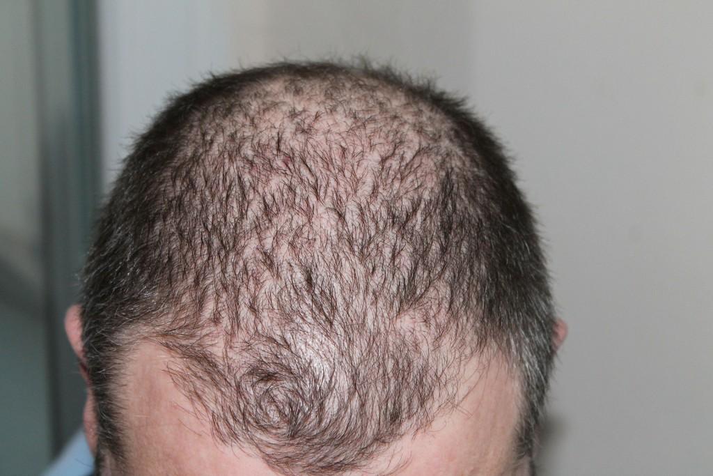 hair-248050_1920